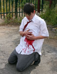 Picture of the bully bleeding